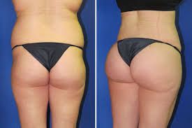 An easy way to heavy and soft buttocks of the girls