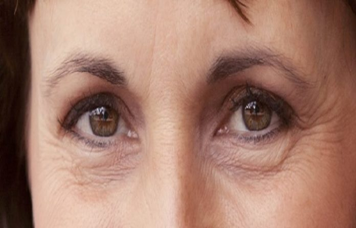 Remove wrinkles around the eyes is completely natural way